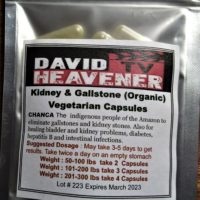 Kidney Stone & Gall Stone